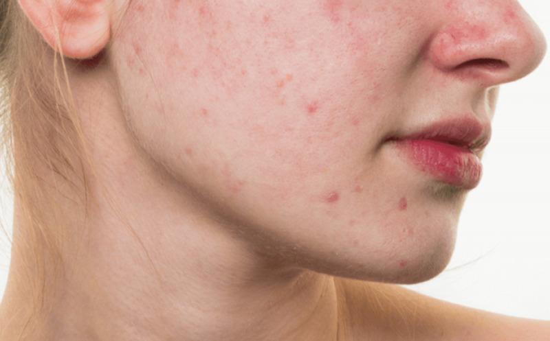 赤ら顔の原因は何