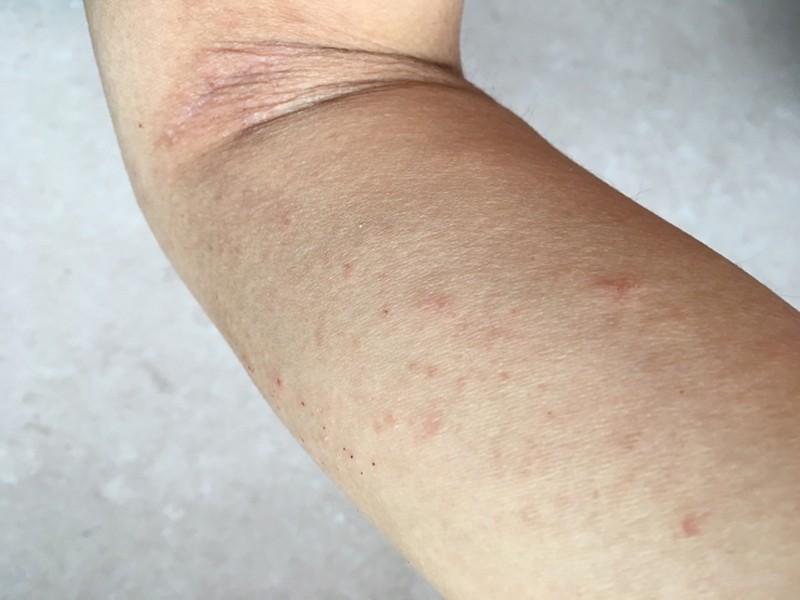 アトピー性皮膚炎はストレスで悪化