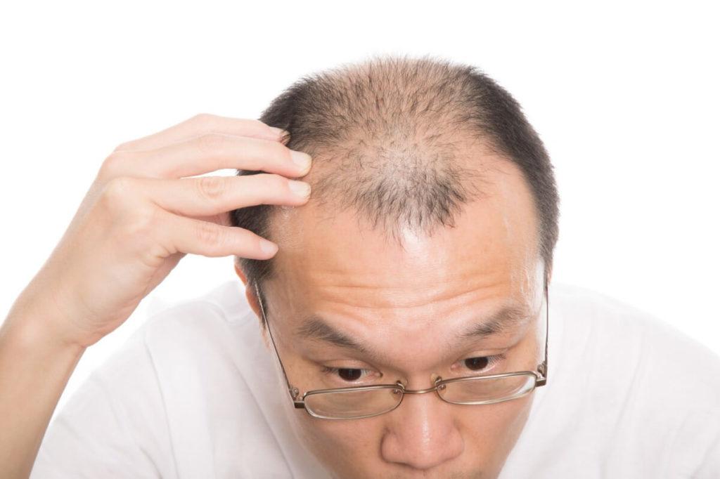 髪の毛のあるなしは女性ホルモンが関係する