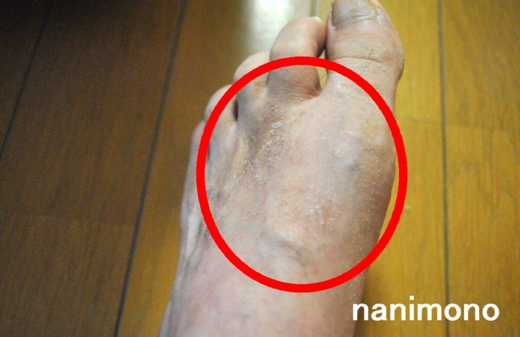 足のアトピー潤静を塗る前