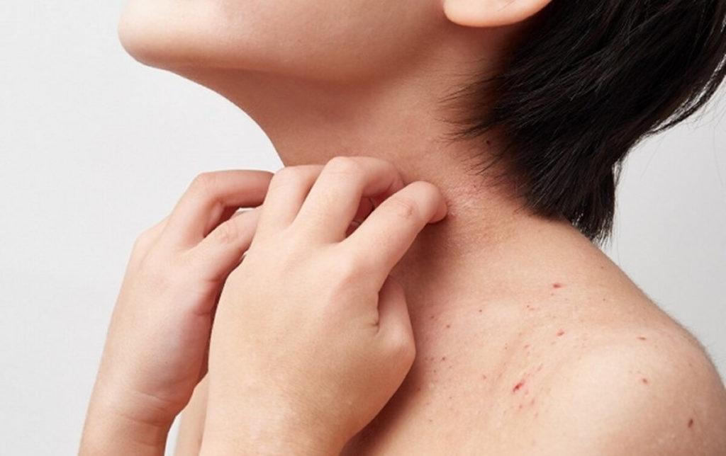 アトピー性皮膚炎の子供