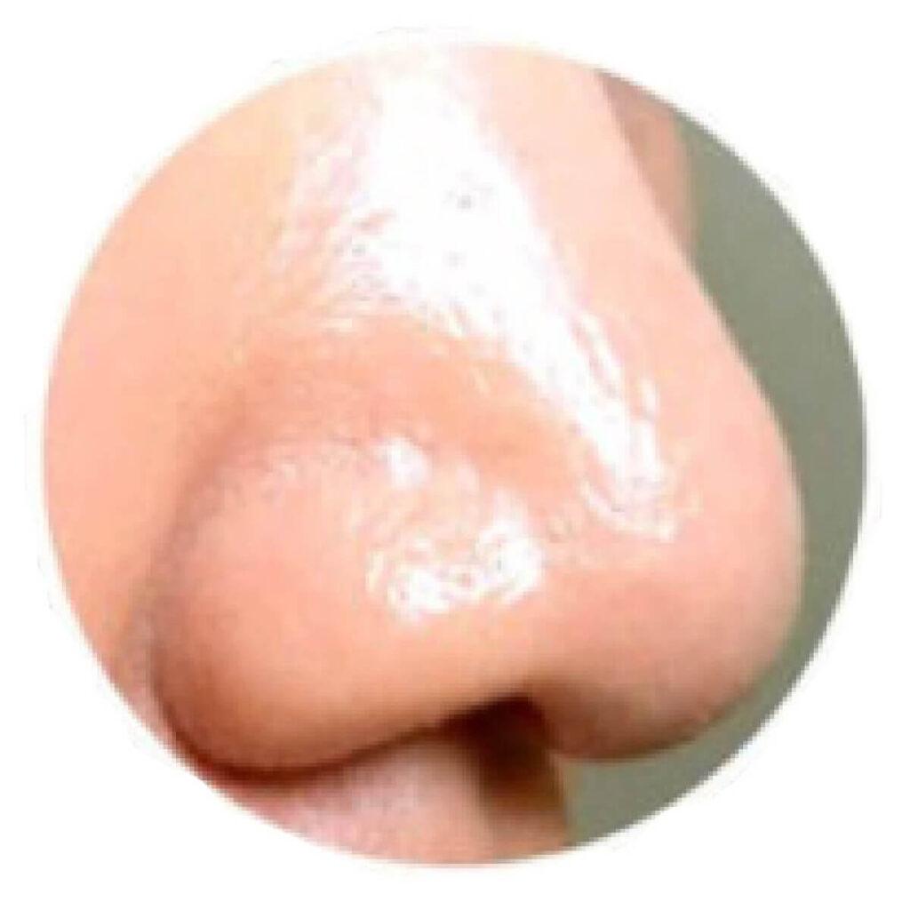 テカテカ鼻
